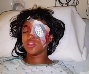 Dornella Conner, injured after run-in with St. Louis County Police. Image: NBC